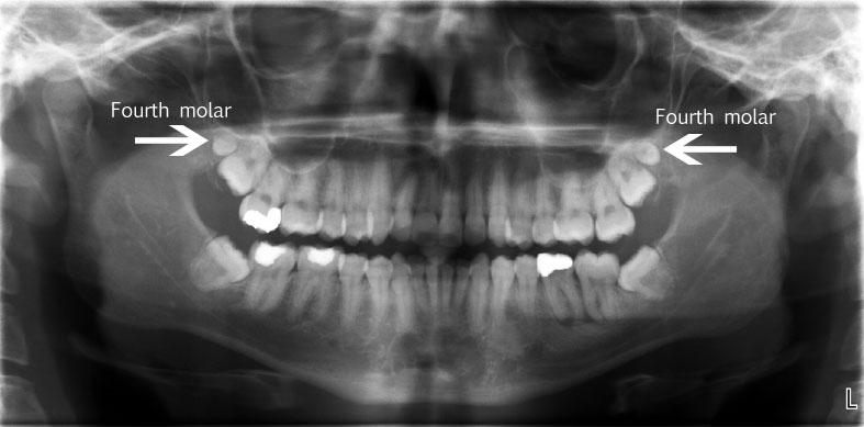 mandibular peg fourth molar - What to Do about the Fourth Molar: Similar Management Strategies as the Third Molar aka Wisdom Tooth?