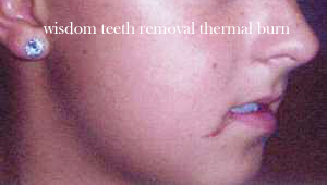 wisdom teeth removal burn - Wisdom Teeth Removal can Lead to Teasing and Unwanted Nicknames
