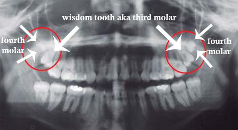 fourth molar xray teeth - Why Do Some People have a Fourth Molar?