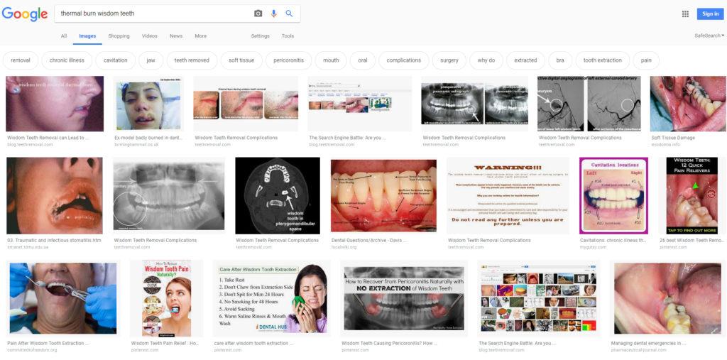 thermal burn wisdom teeth Google 2019 1024x507 - Dental Drills Leading to Thermal Burns