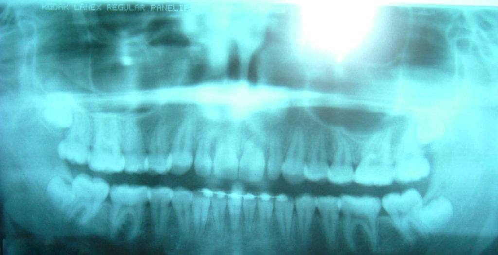 wisdom teeth panoramic x ray 1024x526 - Using Panoramic X-Rays of Lower Wisdom Teeth to Legally Prove if Someone is Older than 18 Years and 21 Years