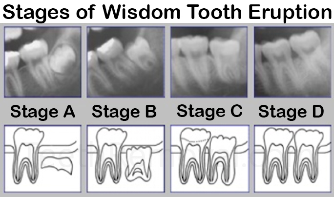 wisdom tooth eruption staging olze - Forensic Age Estimation using Wisdom Teeth