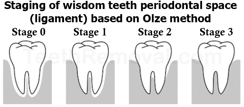 wisdom tooth staging periodontal space olze 1 - Using Panoramic X-Rays of Lower Wisdom Teeth to Legally Prove if Someone is Older than 18 Years and 21 Years