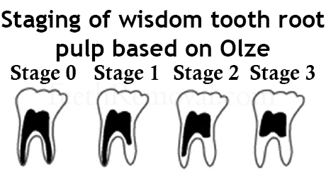 wisdom tooth staging root pulp olze - Using Panoramic X-Rays of Lower Wisdom Teeth to Legally Prove if Someone is Older than 18 Years and 21 Years