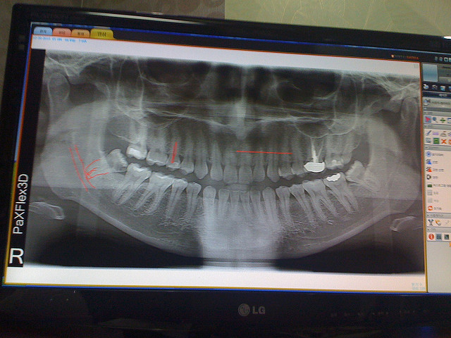 x ray of wisdom teeth - Proving a Person is Older than 18 Years Based on the Periodontal Space (Ligament) and Root Pulp of Lower Wisdom Teeth from Imaging