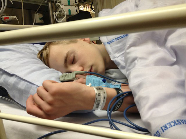 general anesthesia sleeping - Is there a Difference in Complications following Wisdom Teeth Removal when using Local Anesthesia versus General Anesthesia?