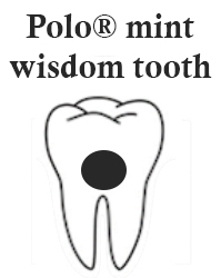 polo mint wisdom tooth teeth - What is the Polo Mint Wisdom Tooth and How to Treat It