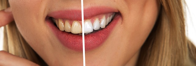 teeth whitening woman smile - Reasons Why You Should Look Into Cosmetic Dentistry