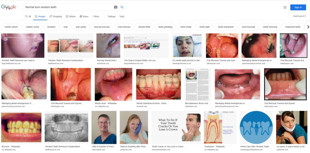 google wisdom teeth thermal burn 2020 1024x507 - Dental Drills Leading to Thermal Burns