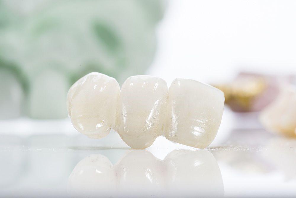 dental bridge teeth - Dental Bridges in Jacksonville - Benefits of Getting Them