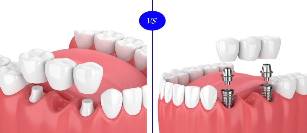 dental implants comparison - How to Get Low Cost Dental Implants Done