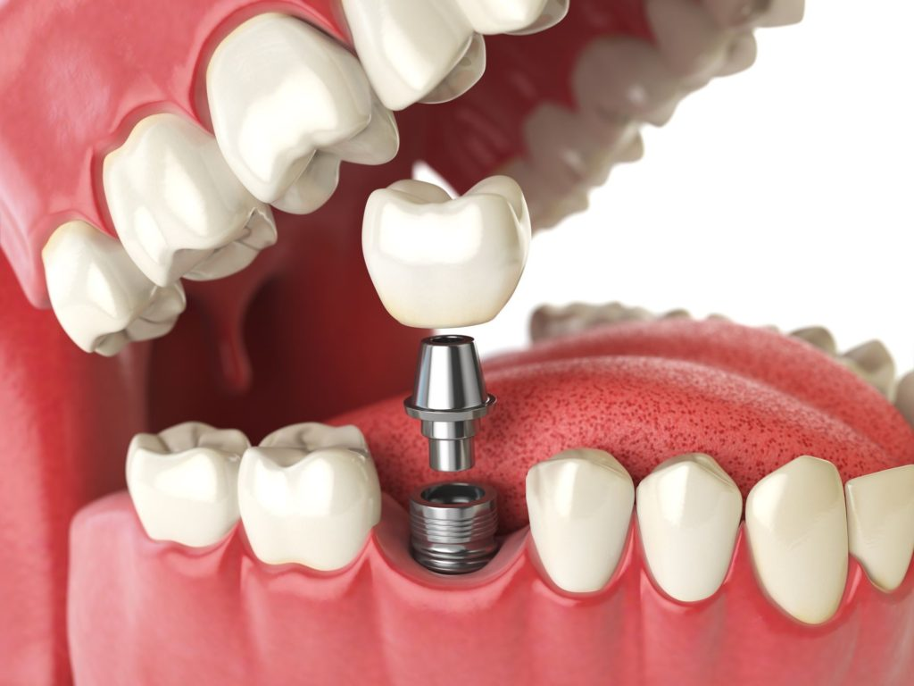 dental implants insertion 1024x768 - How to Get Low Cost Dental Implants Done