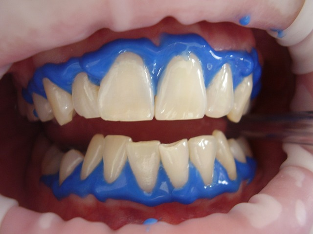 laser teeth whitening - Cosmetic Dentistry in the Era of COVID-19